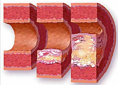 ateroskleroz-prichiny