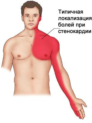 boli-pri-stenokardii
