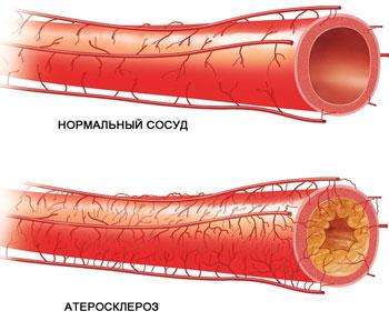sosud-ateroskleroz